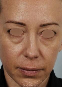 Blépharoplastie avec lipofilling vue de face avant