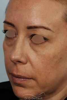 Blépharoplastie avec lipofilling vue de quart avant