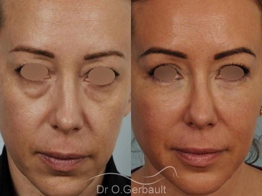 Blépharoplastie avec lipofilling vue de face duo