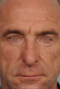 Blépharoplastie inférieure vue de face apres