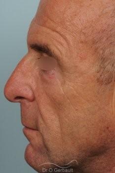 Blépharoplastie inférieure vue de profil apres