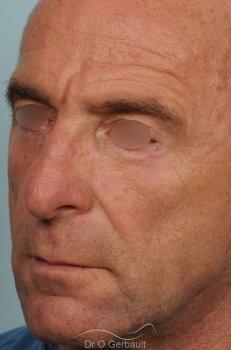 Blépharoplastie inférieure vue de quart apres