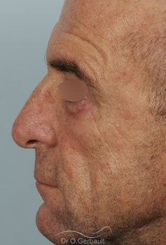 Blépharoplastie inférieure vue de profil avant