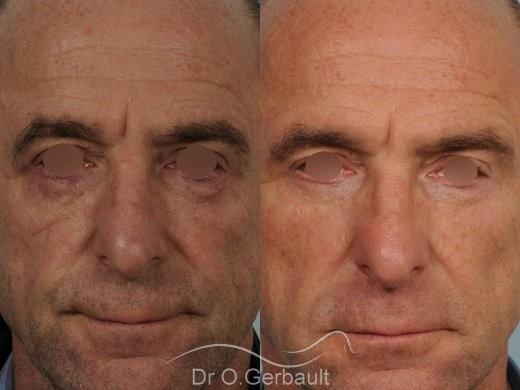 Blépharoplastie inférieure vue de face duo