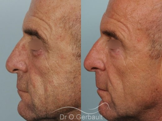 Blépharoplastie inférieure vue de profil duo