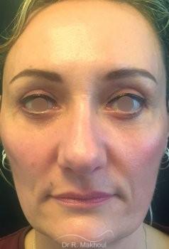 Blépharoplastie vue de face apres