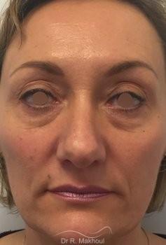 Blépharoplastie vue de face avant