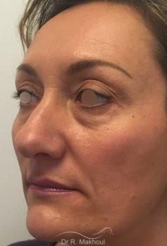Blépharoplastie vue de quart avant