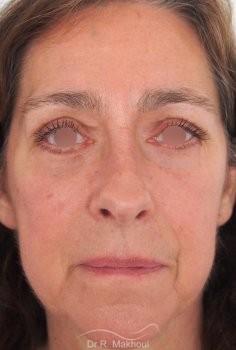 Blépharoplastie supérieure et inférieure vue de face apres