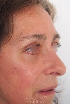 Blépharoplastie supérieure et inférieure vue de quart apres