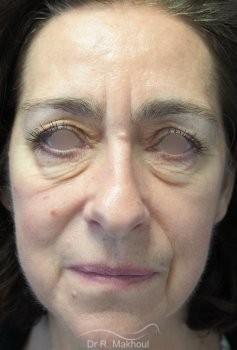 Blépharoplastie supérieure et inférieure vue de face avant
