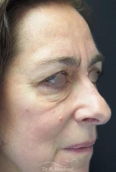 Blépharoplastie supérieure et inférieure vue de quart avant