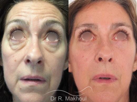 Blépharoplastie supérieure et inférieure vue de face duo
