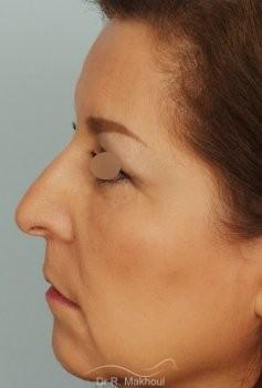 Blépharoplastie vue de profil apres