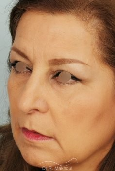 Blépharoplastie vue de quart apres