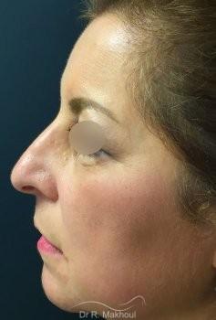 Blépharoplastie vue de profil avant
