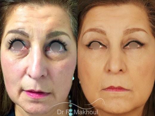Blépharoplastie vue de face duo