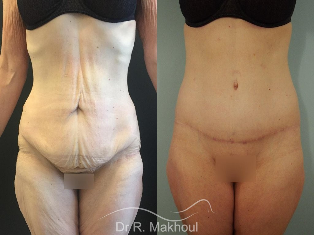 Bodylift, lifting de la silhouette vue de face duo