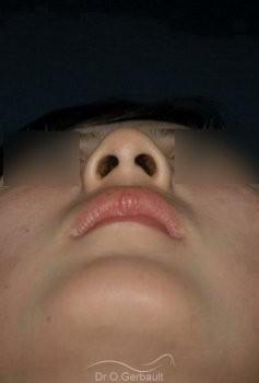 Bosse et pointe de nez Ethnique tombante vue de face avant