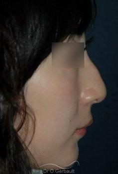Bosse et pointe de nez Ethnique tombante vue de profil avant