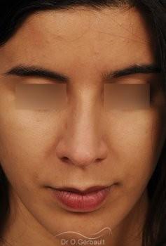 Bosse et pointe de nez large vue de face apres