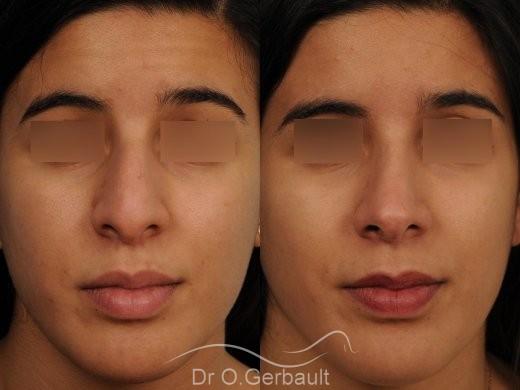 Bosse et pointe de nez large vue de face avant-apres