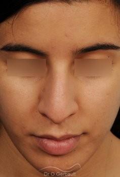 Bosse et pointe de nez large vue de face avant
