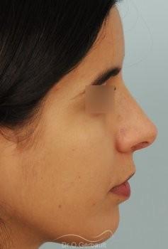 Bosse et pointe de nez large vue de profil apres