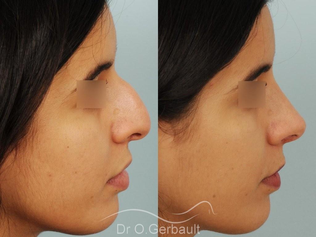 Bosse et pointe de nez large vue de profil avant-apres