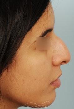 Bosse et pointe de nez large vue de profil avant