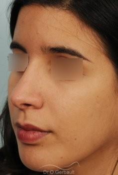 Bosse et pointe de nez large vue de quart apres