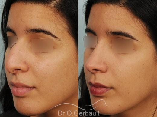 Bosse et pointe de nez large vue de quart avant-apres