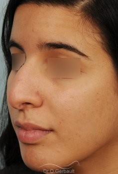 Bosse et pointe de nez large vue de quart avant