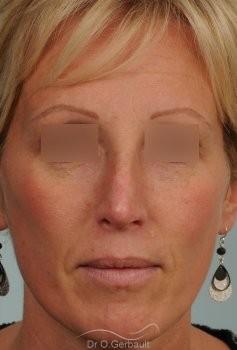 Bosse et pointe ronde sur peau très fine vue de face apres