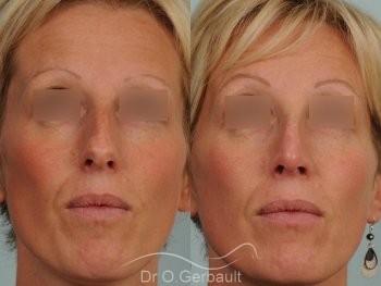 Bosse et pointe ronde sur peau très fine vue de face avant-apres
