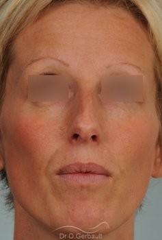 Bosse et pointe ronde sur peau très fine vue de face avant