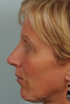 Bosse et pointe ronde sur peau très fine vue de profil apres