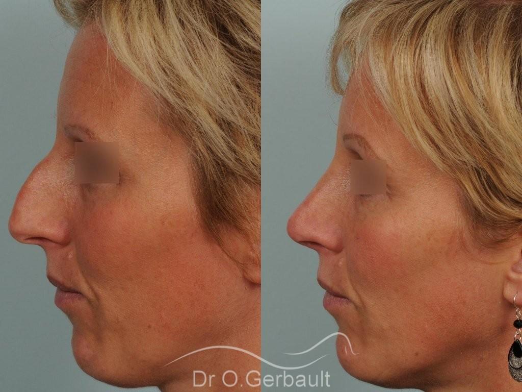 Bosse et pointe ronde sur peau très fine vue de profil avant-apres