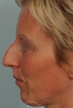 Bosse et pointe ronde sur peau très fine vue de profil avant