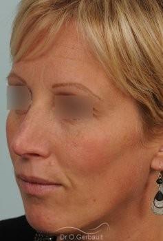 Bosse et pointe ronde sur peau très fine vue de quart apres