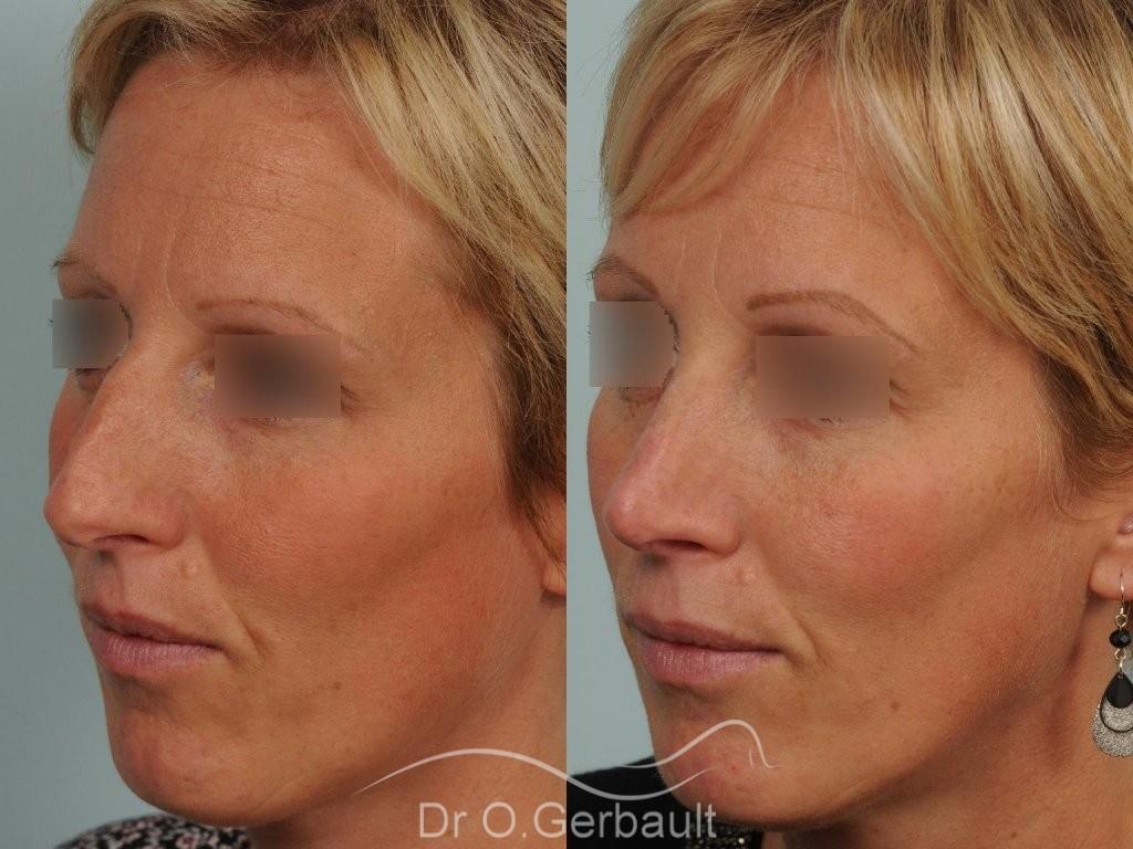 Bosse et pointe ronde sur peau très fine vue de quart avant-apres