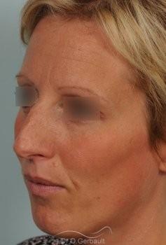 Bosse et pointe ronde sur peau très fine vue de quart avant