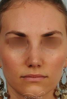 Bosse marquée et asymétrie de nez vue de face apres