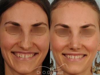 Bosse marquée et asymétrie de nez vue de face avant-apres