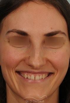 Bosse marquée et asymétrie de nez vue de face avant