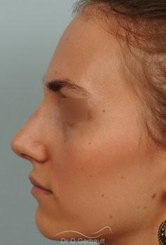 Bosse marquée et asymétrie de nez vue de profil apres