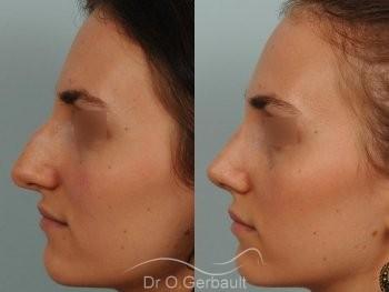 Bosse marquée et asymétrie de nez vue de profil avant-apres