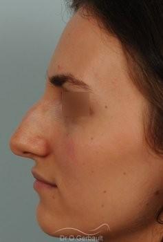 Bosse marquée et asymétrie de nez vue de profil avant