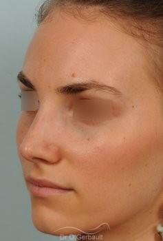 Bosse marquée et asymétrie de nez vue de quart apres