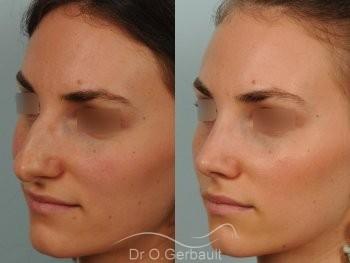Bosse marquée et asymétrie de nez vue de quart avant-apres